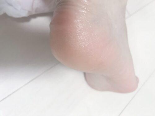 パックをした後の足